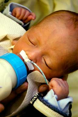 Premature Infant with Jaundice Drinking Formula from a Bottle